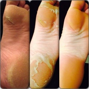 The Inside Scoop On Our Baby Foot Peel
