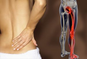 pain, back pain, sciatica